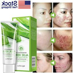 Aloe Vera Gel Organic After-Microdermabrasion Moisturizer Lo