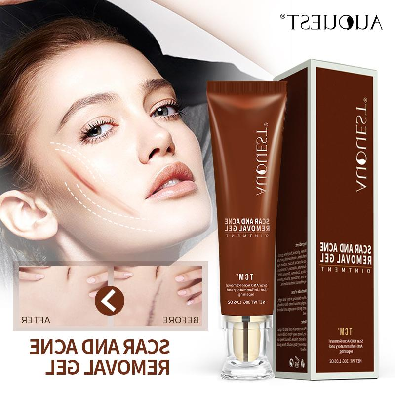 AuQuest 30g Remover Gel Women Anti <font><b>Lotion</b></font> Acne Old Scars Body Scar Treatment Skin Care